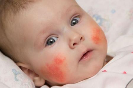 علامت های آلرژی بدن کودکان به گندم