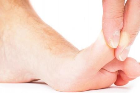 بهترین روش برای درآوردن پلیسه یا تیغ از پوست انگشت دست و پا