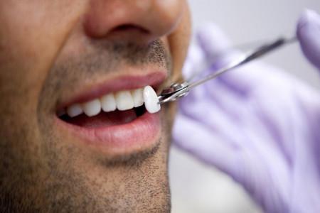 لومینیرز دندان چیست؟ لومینیرز بهتر است یا کامپوزیت
