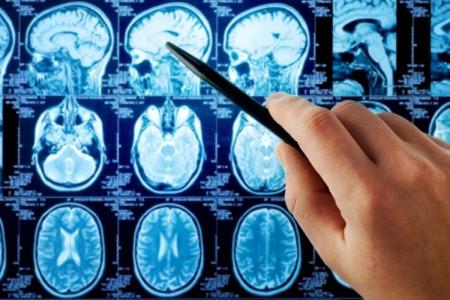 علت ایجاد سرطان مغز چیست؟