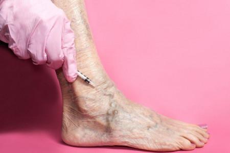 چگونه واریس پا را با اسکلروتراپی درمان کنیم؟