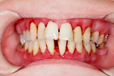 انواع بیماری لثه : آیا بیماری لثه باعث بوی بد دهان میشود ؟