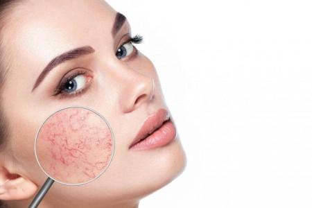 واریس صورت | علت و راههای درمان رگ های عنکبوتی صورت