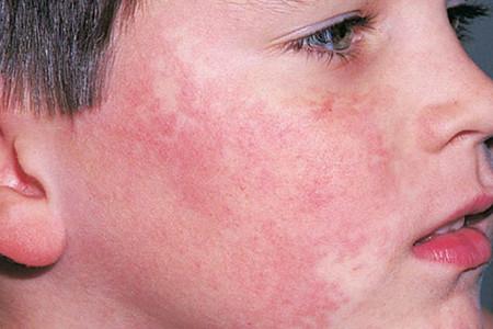 پوست سرخی عفونی در کودکان چگونه ایجاد میشود ؟