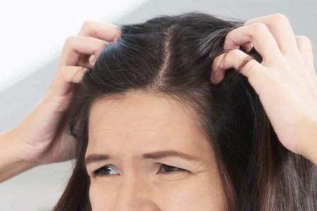 ۱۴ علت اصلی بروز زخم پوست سر چیست ؟