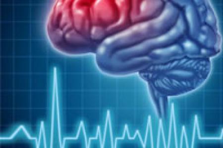 سکته مغزی ؛بیماری ای که بی خبر وبی درد می آید
