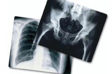 اشعه ایکس چیست و از اشعه ایکس کجا استفاده می شود