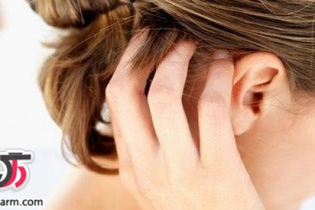 روش های تسکین دهنده خارش پوست سر