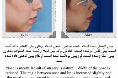 گالری از (رینوپلاستی) جراحی زیبایی بینی دکتر حمیدرضا حسنانی