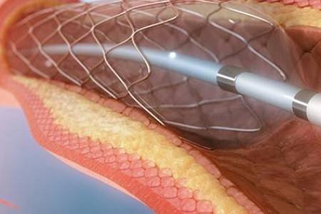 آنژیوگرافی چیست؟به همراه مراحل انجام آنژیوگرافی