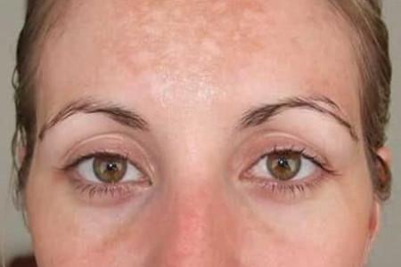 درمان لکه های تیره صورت بعد از زایمان