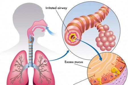 درمان عفونت ریه در منزل با گیاهان دارویی