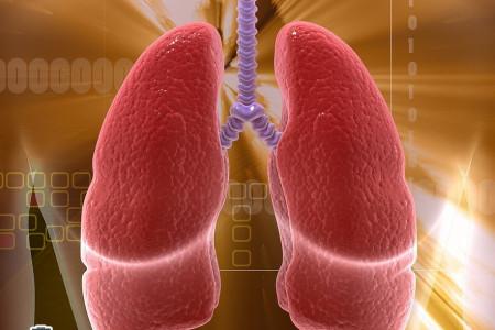 علت؛علائم؛پیشگیری و درمان بیماری آتلکتازی
