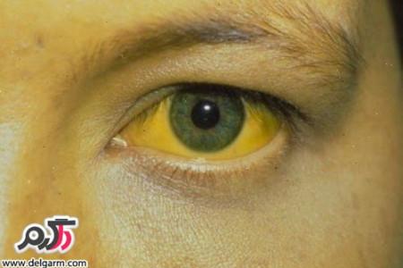 آیا هپاتیت a خطرناک است؟