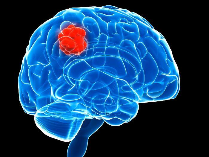 تعریف تومورهای مغزی