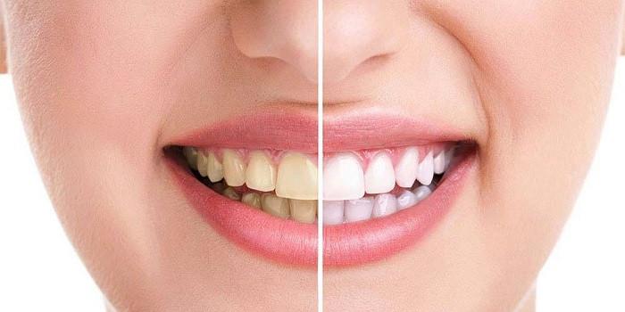 3 روش ساده و خانگی برای جرم گیری دندان ها