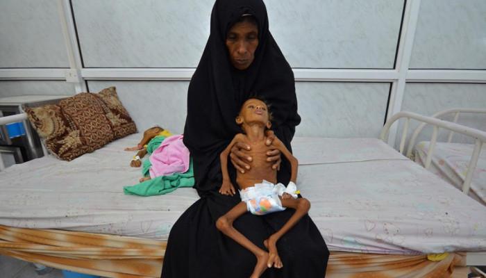 تصاویر کودکان گرسنه یمنی