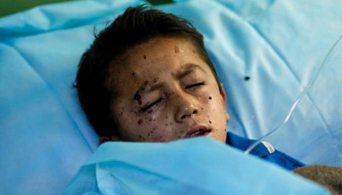 تصاویر انفجار انتحاری در کابل