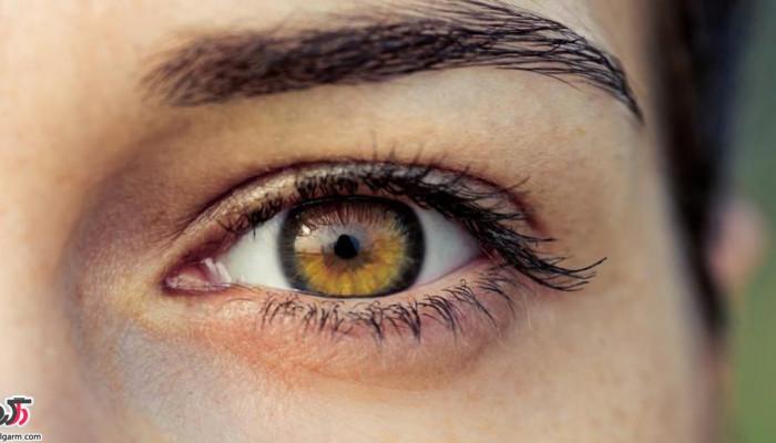 درمان دانه های چربی سفید زیر چشم