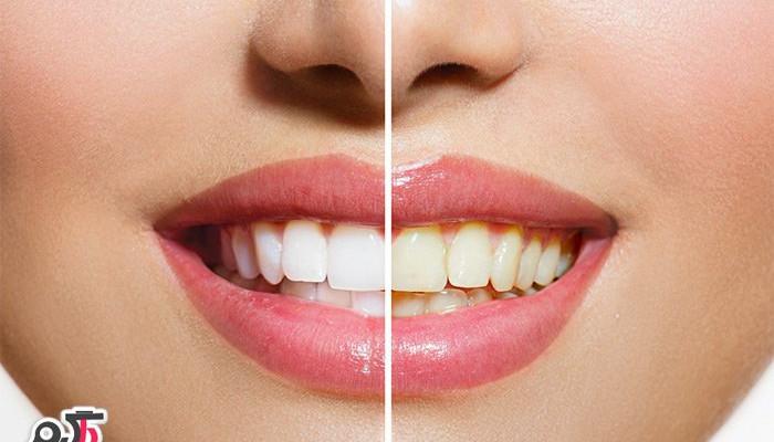 زرد بودن رنگ دندان ها نشانه چیست؟