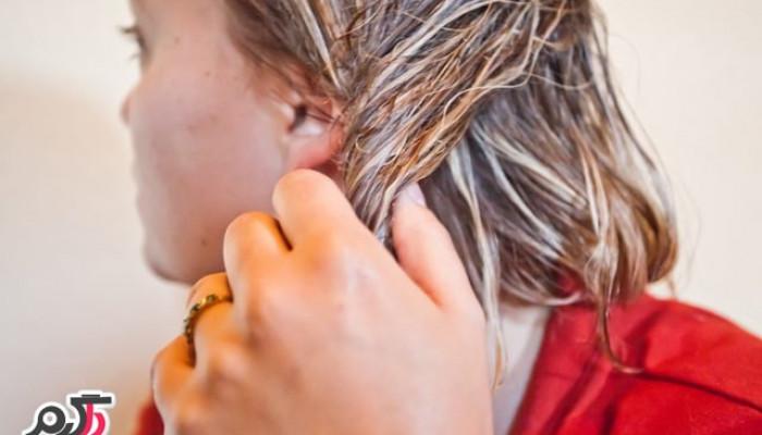 فواید بی نظیر زرده تخم مرغ برای سلامت مو