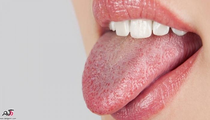 دلایل خشک شدن دهان چیست؟