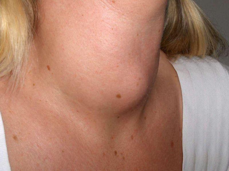 میگزدم ( myxedema ) چیست و چگونه درمان می شود؟