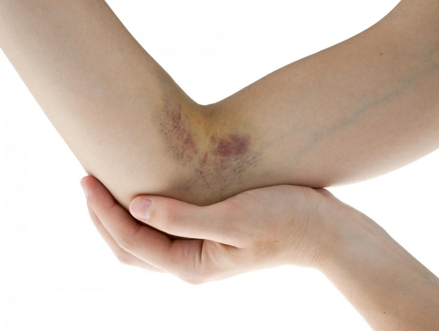 دلیل کبودی های طولانی مدت روی پوست چیست؟
