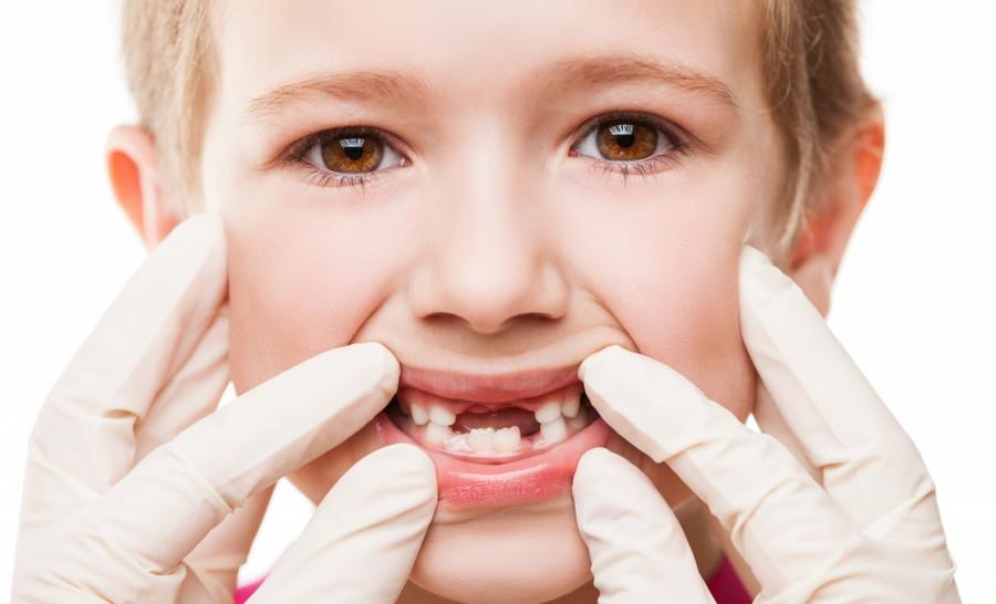 شیری ها و عصب کشی: آیا دندان شیری عصب دارد؟