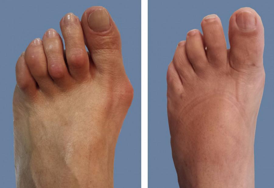 علل ، تشخیص ، عوارض و درمان فوری انگشت چکشی پا