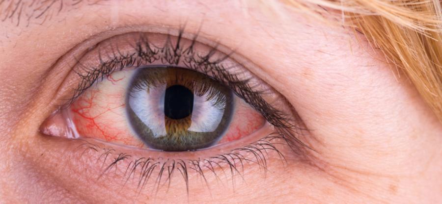 علل، تشخیص، پیشگیری و درمان فوری قرمزی چشم