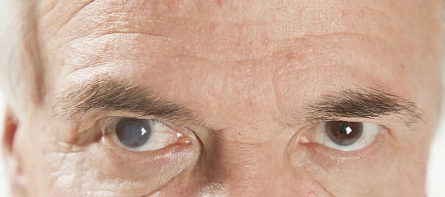 آب مروارید چشم چیست؟علائم آب مروارید چشم کدام است؟درمان آب مروارید چشم