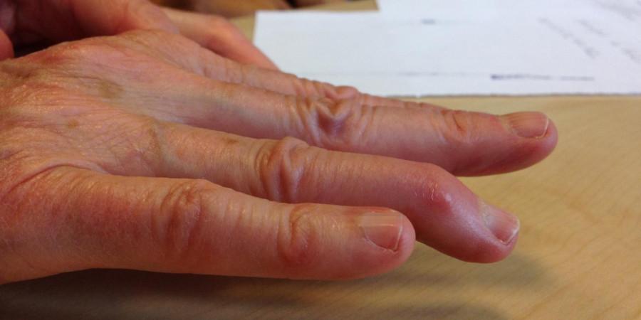 علل ، پیشگیری و درمان فوری انگشت چکشی دست