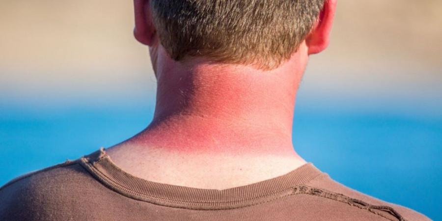 علل ، پیشگیری ، عوارض و راههای درمان آفتاب سوختگی