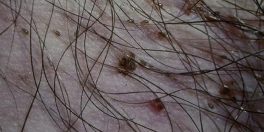 علائم و روش های درمانی بیماری شپش عانه + راه های پیشگیری