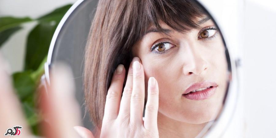 فولیکولیت التهاب یا عفونت فولیکول مو +درمان این عارضه