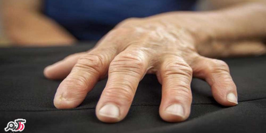 علائم و درمان آرتریت روماتوئید( روماتیسم مفصلی)